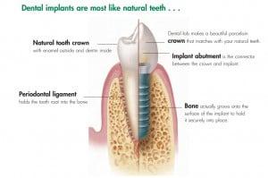 Dental-Implants-Huntington-Beach-300x199