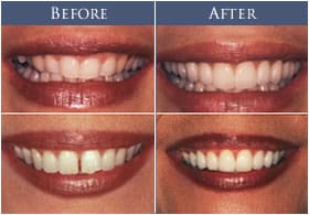 Porcelain-Veneers-Huntington-Beach
