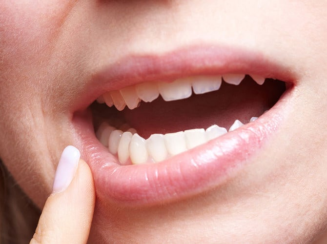 Emergency Dentist Huntington Beach