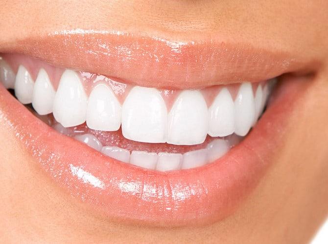 Teeth Whitening Huntington Beach