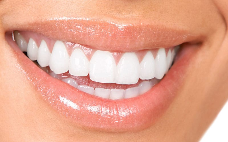 Teeth Whitening Huntington Beach