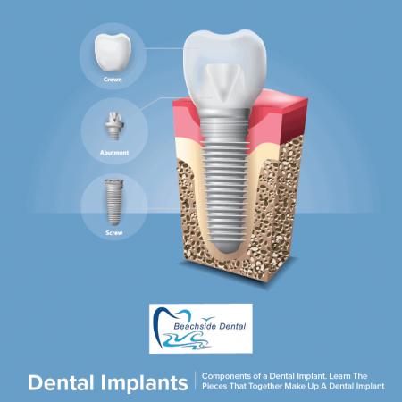 dental-implants-huntington-beach-beachside-dentistry